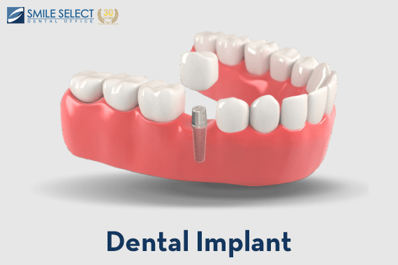 Dental Implants: A Boon for All Seasons!