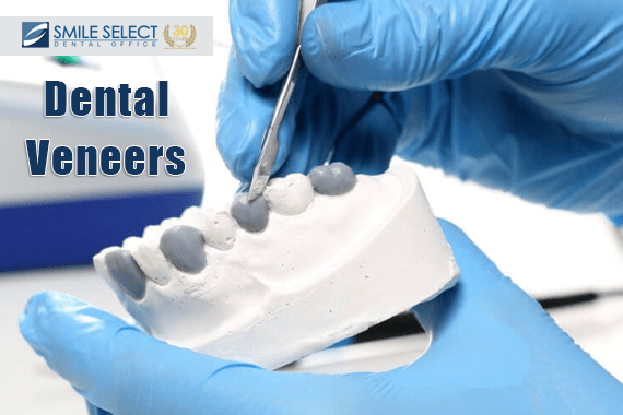 Get that Smile Back with Dental Veneers in 2020