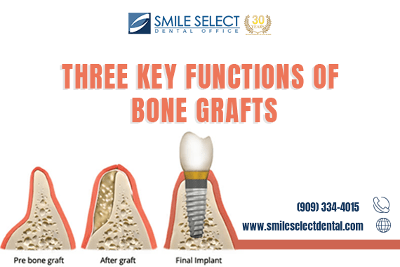 THREE KEY FUNCTIONS OF BONE GRAFTS