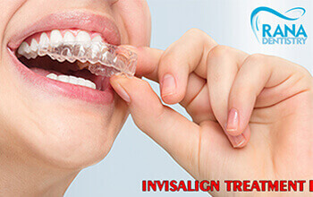 5 FAQs About Invisalign Only an Experienced Dentist Can Answer