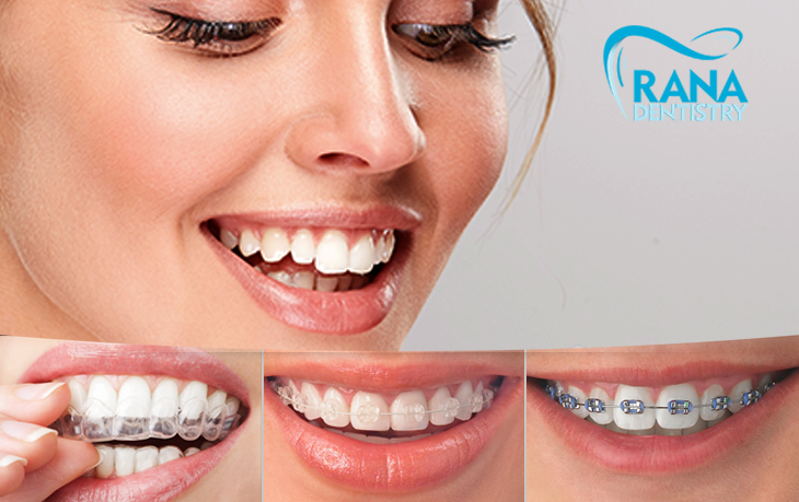 Orthodontics Treatment: A Proven Solution for Crooked Teeth