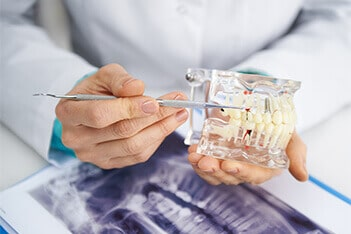 UNFOLD THE VITAL INFORMATION ON DENTURES WITH SMILE SELECT DENTAL
