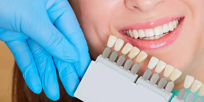 Learn About Getting The Best Dental Veneers in Dublin, CA