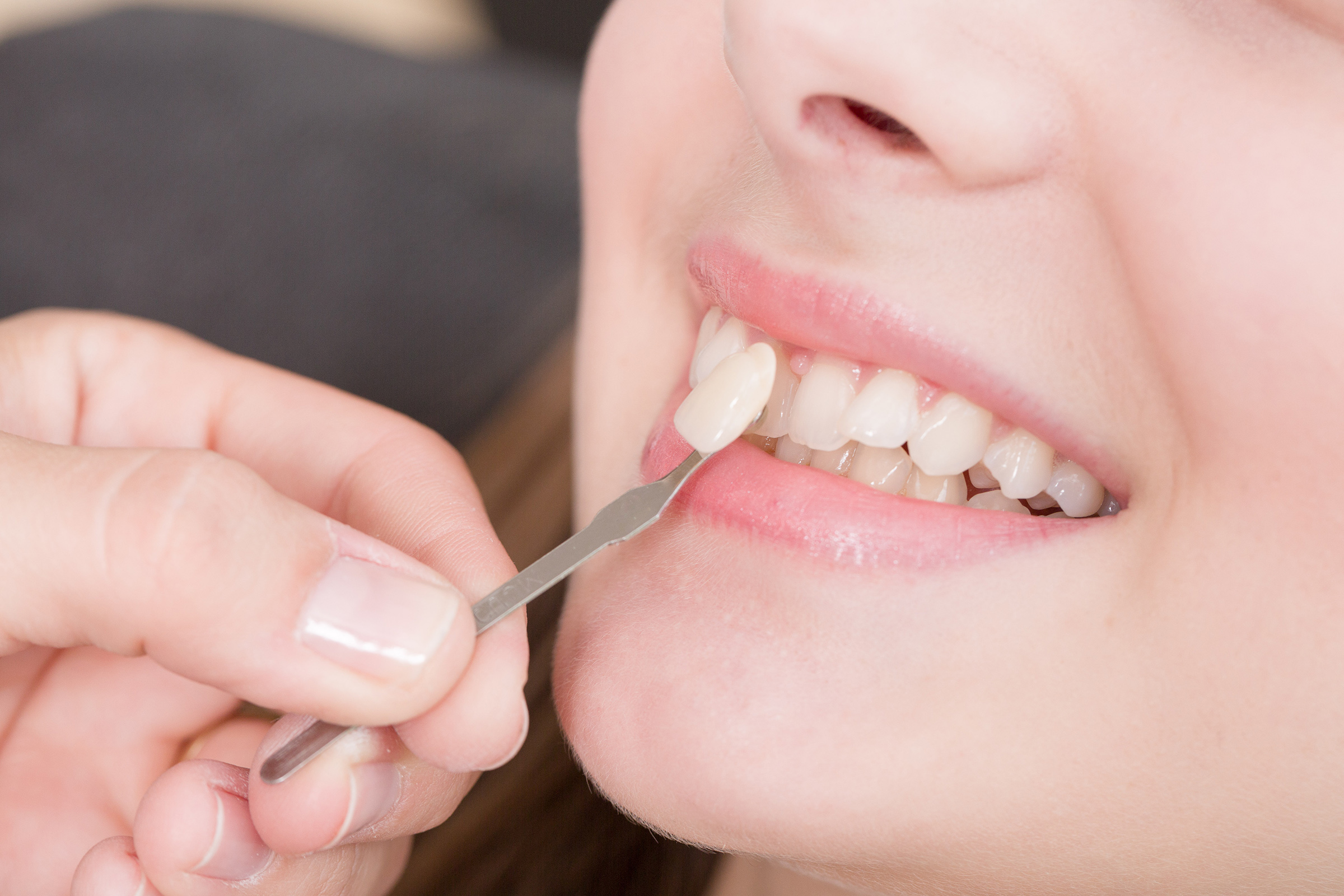THE PROS & CONS OF DENTAL VENEERS