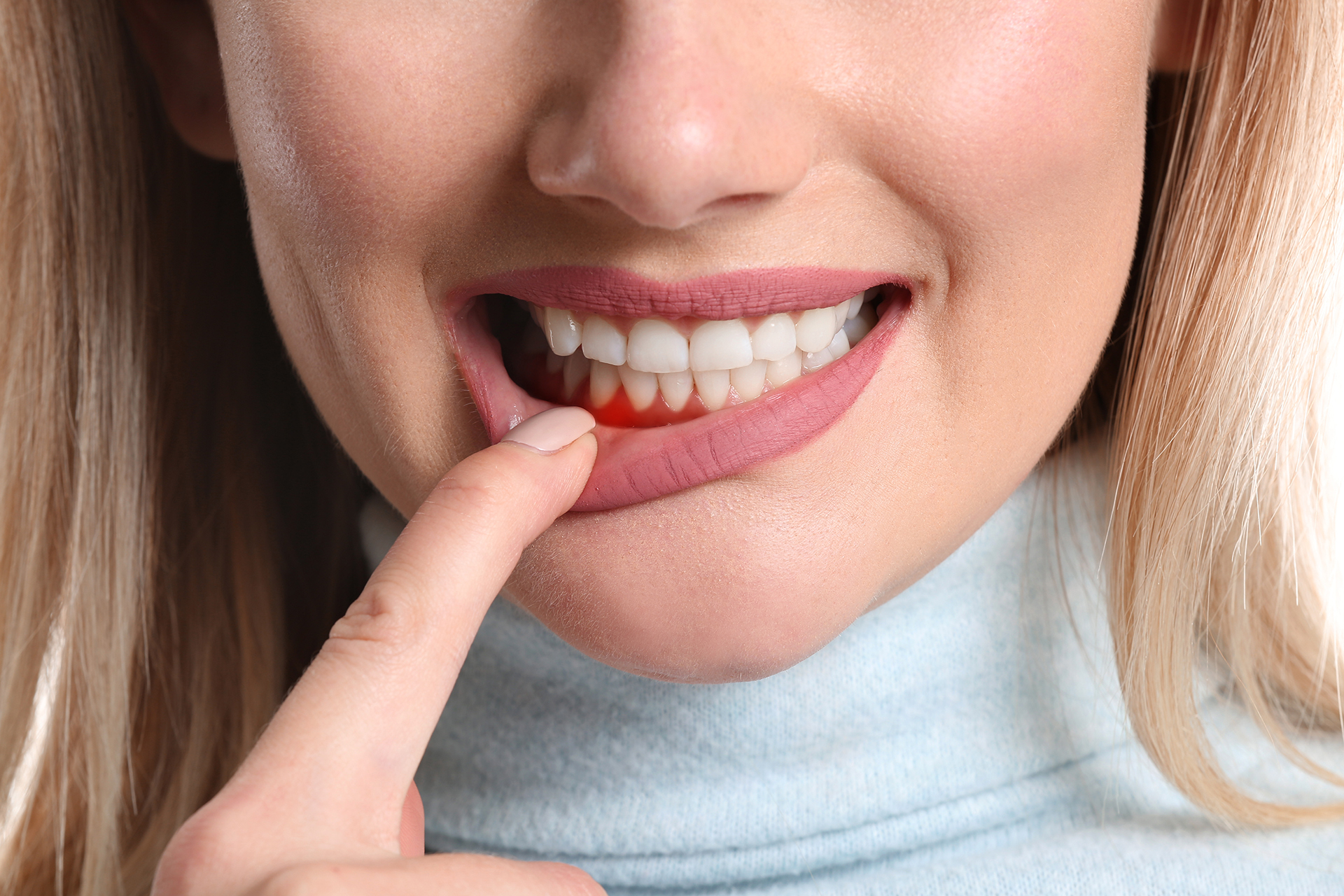 Gingivitis: What exactly is it, and how can you get rid of it?